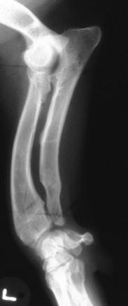 Синдром короткой лучевой кости, Short Radius Syndrome