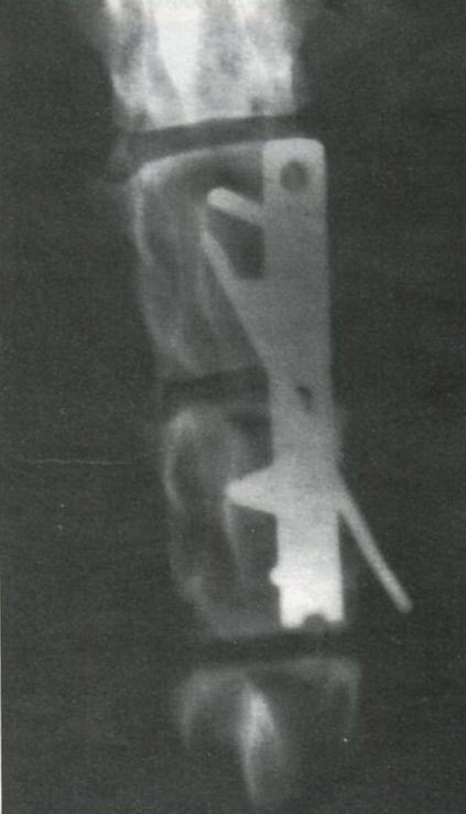 Собака породы чау-чау с наличием параплегии и травматическим вывихом на уровне L2-L3