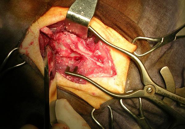 Отделение мягких тканей от дуг и суставов позвонков