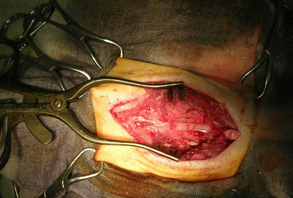 Удаление дужек позвонков и освобождение спинного мозга от компрессии