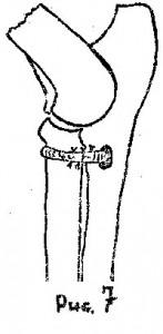 Стабилизация локтевого сустава
