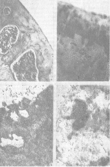 Нарушение структурной организации суставного хряща под влиянием гидрокортизона ацетата