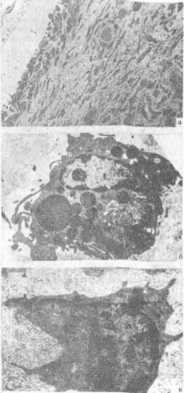 Клеточный состав зоны дефекта головки бедренной кости