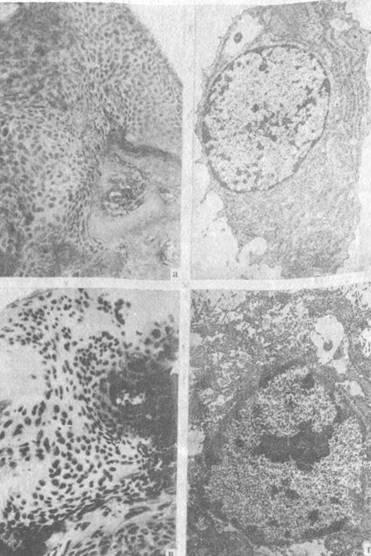 Клеточный состав зоны дефекта головки бедренной кости. 30 дней после нанесения дефекта
