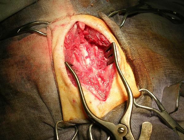 Визуализация спинного мозга и выделение скопившейся крови